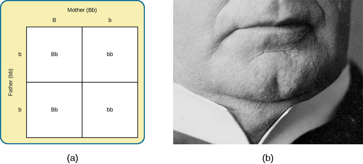 Image (a) is a Punnett square showing the four possible combinations (Bb, bb, Bb, bb) resulting from the pairing of a bb father and a Bb mother. Image (b) is a close-up photograph showing a cleft chin.