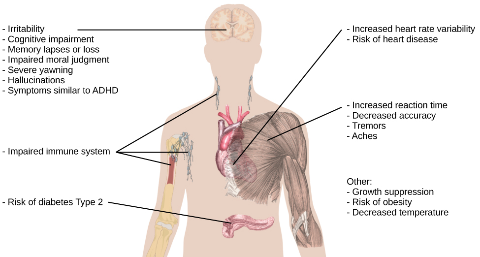 """An illustration of the top half of a human body identifies the locations in the body that correspond with various adverse affects of sleep deprivation. The brain is labeled with Irritability,"""" """"Cognitive impairment,"""" """"Memory lapses or loss,"""" """"Impaired moral judgement,"""" """"Severe yawning,"""" """"Hallucinations,"""" and """"Symptoms similar to ADHD."""" The heart is labeled with Increased heart rate variability and Risk of heart disease. The muscles are labeled with Increased reaction time, Decreased accuracy, Tremors, and Aches. There is an organ near the stomach labeled Risk of diabetes Type 2. Other risks include Growth suppression, Risk of obesity, Decreased temperature, and Impaired immune system."""