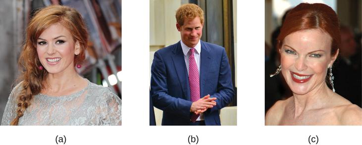 Photograph A shows Isla Fischer. Photograph B shows Prince Harry. Photograph C shows Marcia Cross.